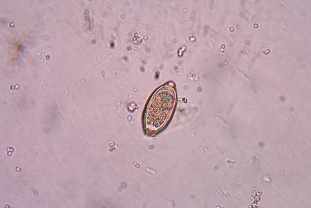 Trichuris trichiura parasite.