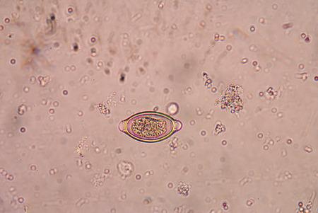 parasite: Trichuris trichiura parasite.