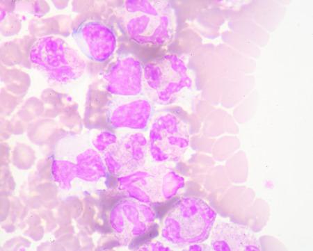 globulos blancos: células blancas de la sangre Foto de archivo