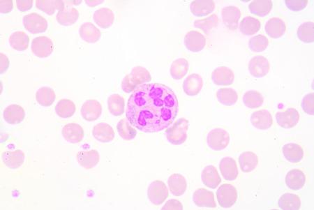 globuli bianchi: globuli bianchi