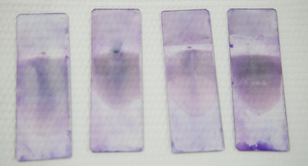 methanol: blood smear test or blood film.