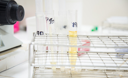 urine analysis: Urine analysis testing in the laboratory.