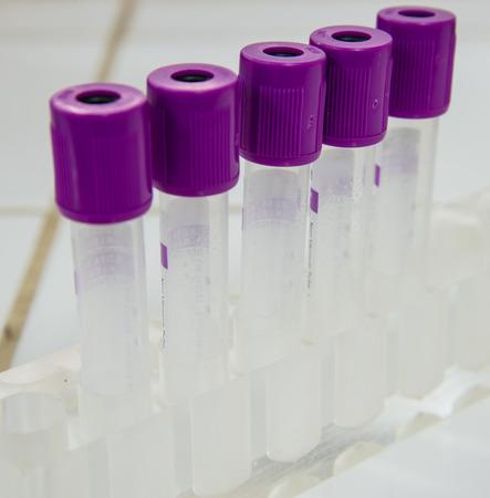 centrifuge: tubes prepared in lab centrifuge machine.