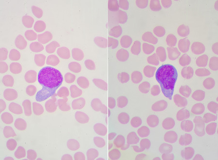 A blood smear is often used as a follow-up test to abnormal results on a complete blood count (CBC) to evaluate the different types of blood cells. Stock Photo