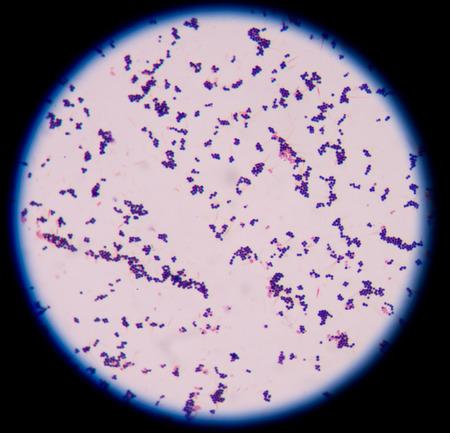 Gram positive cocci,gram stain. photo