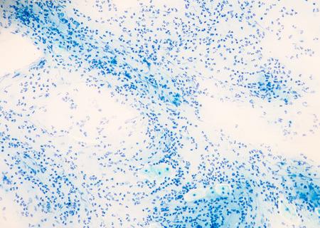 celulas humanas: glóbulos blancos en la Base Aérea de esputo.