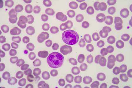 neutrophil: Blood cell formation from bone marrow