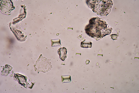 amorphous: Tripple phosphete cystal in urine. Stock Photo