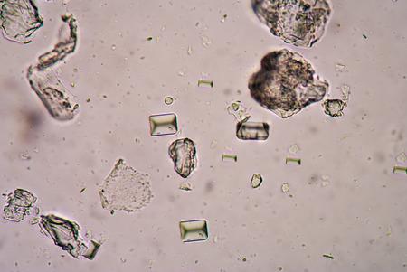 tripple: Tripple phosphete cystal in urine. Stock Photo