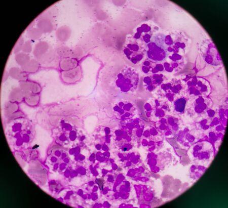 neutrophil: Abnormal neutrophil in pleural fluid smear.