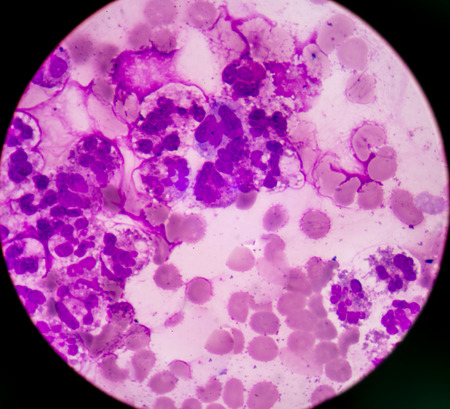 basophil: Abnormal neutrophil in pleural fluid smear.