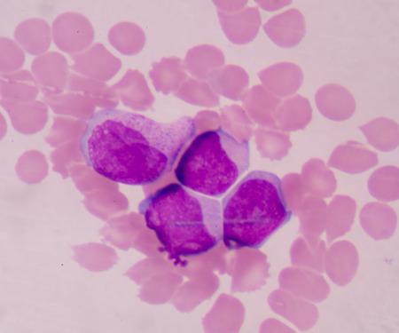 bactericidal: frotis de sangre se utiliza a menudo como una prueba de seguimiento de resultados anormales en un conteo sangu�neo completo (CSC) para evaluar los diferentes tipos de c�lulas sangu�neas. Foto de archivo