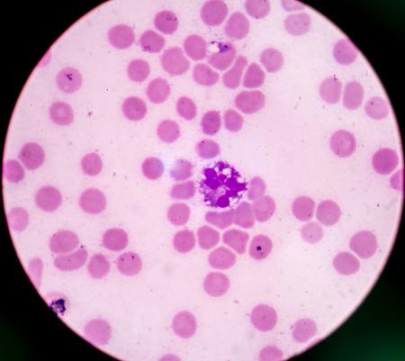 hematopoietic: Abnormal neutrophil in pleural fluid smear.