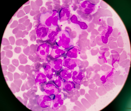 white blood cells: gl�bulos blancos aglutinaci�n espect�culo en frotis de sangre.