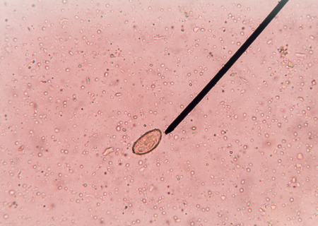stool test: egg of parasite in stool exam test find with microscope.
