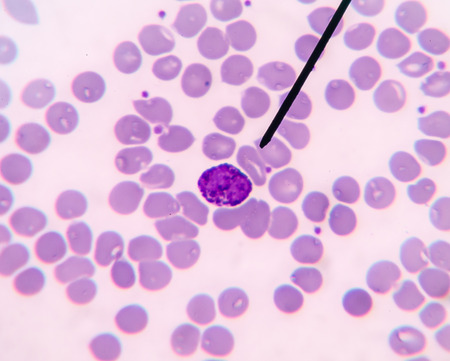 thalassemia: Basophli show in blood smear CBC test find with microscope.