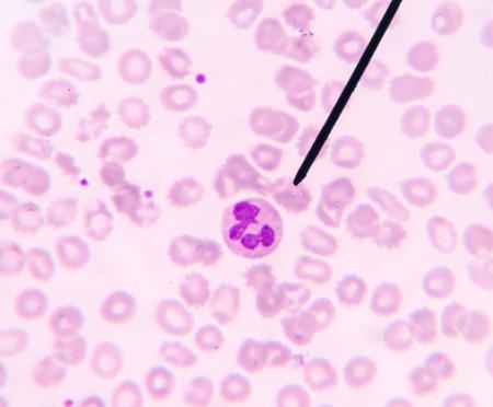 bactericidal: Neutr�filos muestran en la prueba CBC frotis de sangre se encontr� con el microscopio.