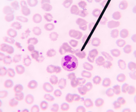 basophil: Neutrophil show in blood smear CBC test find with microscope.