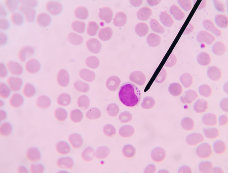 cbc: Lymphocyte show in blood smear CBC test find with microscope. Stock Photo