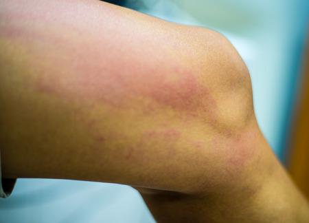 lesions: allergy Stock Photo