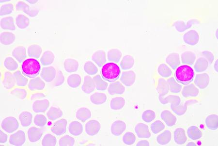 lymphocyte: Lymphocyte flowers shape.