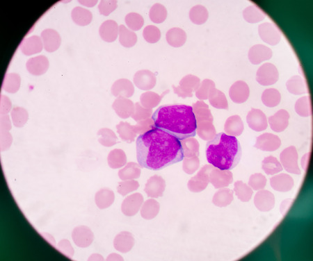 cbc: blood smear is often used as a follow-up test to abnormal results on a complete blood count (CBC) to evaluate the different types of blood cells.