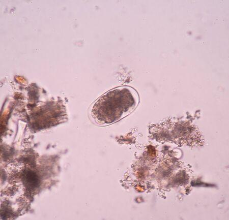 parasite: parasite egg