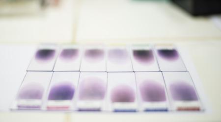 cbc: Blood smear for CBC test.