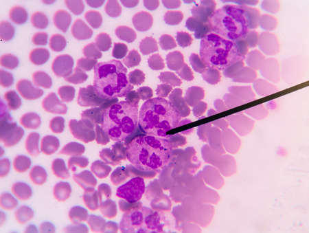 bactericidal: A blood smear is often used as a follow-up test to abnormal results on a complete blood count (CBC) to evaluate the different types of blood cells. Stock Photo