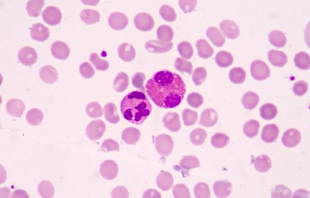globuli bianchi: I globuli bianchi di un essere umano, eosinofili photomicrograph panorama come si � visto al microscopio Archivio Fotografico