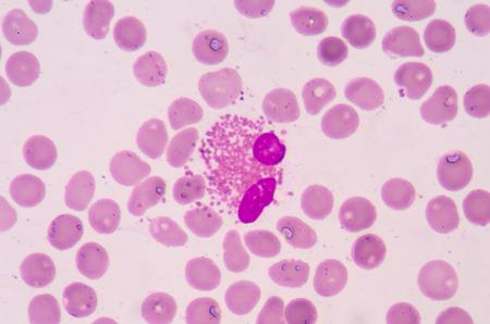 white blood cells: Los gl�bulos blancos de un ser humano, eosin�filos microfotograf�a panorama como se ve en el microscopio Foto de archivo