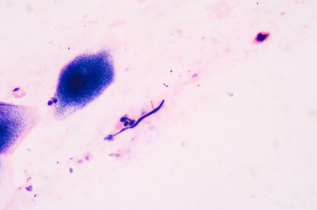 Budding yeast cells with pseudohyphae from sputum gram stain test, in laboratory,fine with microscope.