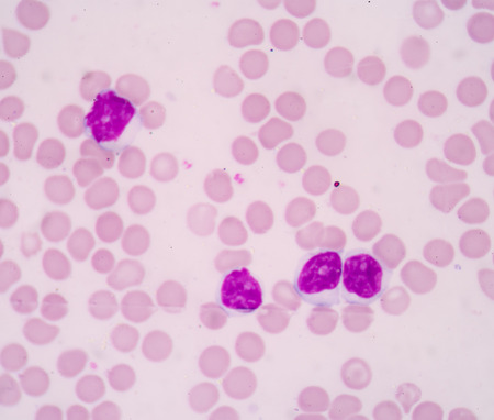 cbc: A blood smear is often used as a follow-up test to abnormal results on a complete blood count (CBC) to evaluate the different types of blood cells.Chronic lymphocytic Leukemia(CLL)