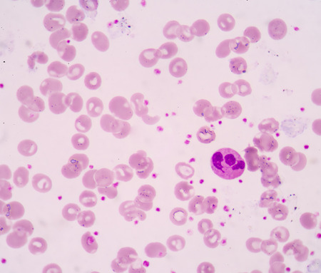 monocyte: Hypersegmented neutrophil.White blood cells of a human, photomicrograph panorama as seen under the microscope(100X)
