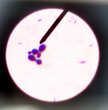 Budding yeast cells in sputum gram stain fine with Microscope 100x. Stok Fotoğraf