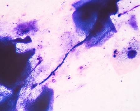 infective: Ciernes c�lulas de levadura con pseudohifas de prueba de tinci�n de Gram del esputo, en el laboratorio, bien con microscopio.