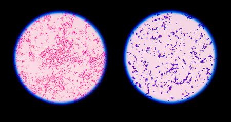 Gram kleuring, ook wel Gram's methode, een werkwijze te differentiëren bacteriesoorten in twee grote groepen (Gram-positieve en Gram-negatieve).