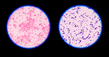 Gram staining, also called Gram's method, is a method of differentiating bacterial species into two large groups (Gram-positive and Gram-negative).