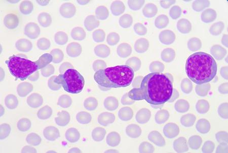 Atypical lymphocyte.blood smear dengue fever.