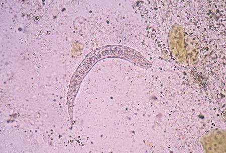 infective: Strongyloides stercoralis es un nem�todo par�sito humano que causa la enfermedad estrongiloidiasis.