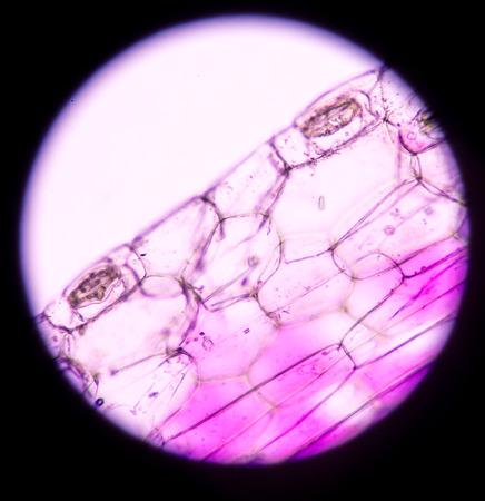 vacuole: plant cells under microscope.