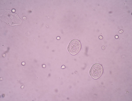 epithelial: bladder epithelial cells in urine. Stock Photo