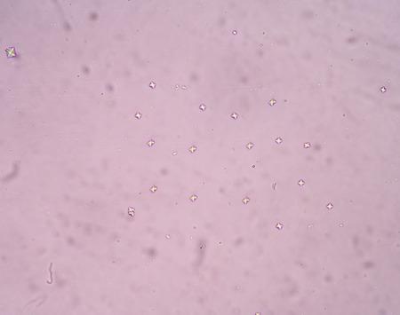 hydrochloric: calcium oxalate crystal in urine analysis.