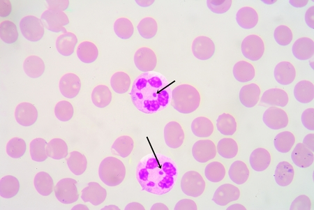 erythrocytes: subject shows a small additional X chromosome structure, known as a neutrophil drumstick.