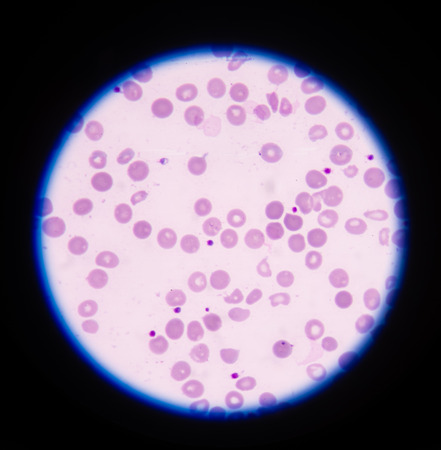 abnormal cells: A blood smear is often used as a follow-up test to abnormal results on a complete blood count (CBC) to evaluate the different types of blood cells. Stock Photo