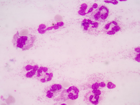 white blood cells: Neutrophil white blood cells. Stock Photo