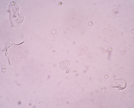 bladder epithelial cells in urine. Stock Photo