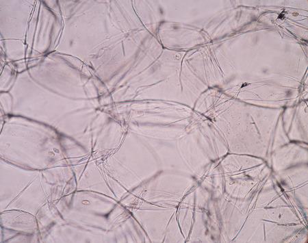 apoptosis: Real photo of plant cells Stock Photo