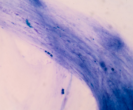 Gram staining, also called Grams method, is a method of differentiating bacterial species into two large groups (Gram-positive and Gram-negative).
