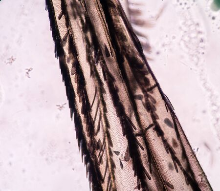 taint: mosquito in microscope.